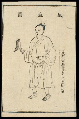view Chinese C18 woodcut: External medicine - 'wind ulcers'