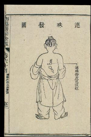 view Chinese C18 woodcut: External medicine - 'String of pearls'