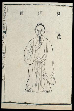 view Chinese C18 woodcut: The nose - subcutaneous ulcers