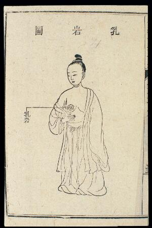 view Chinese C18 woodcut: The chest/breasts - Breast tumour