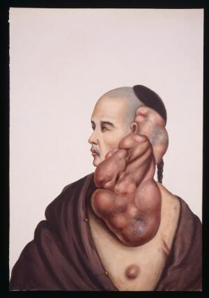 view A man (Wan Wakae) with massive pendent tumours on the left side of his face. Gouache, 18--, after Lam Qua, ca. 1838.
