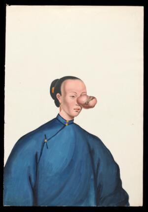 view A woman, facing to right, with a large tumour covering her left eye. Gouache, 18--, after Lam Qua, ca. 1838.