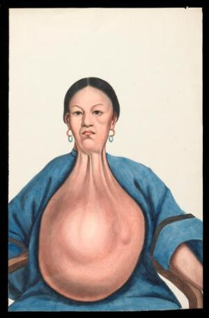 view A woman (Yang She), facing front, with a massive pendent tumour hanging down from her neck. Gouache, 18--, after Lam Qua, 1837.