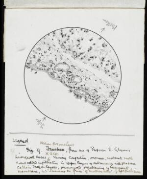view Drawing of the 1918 Influenza: Main bronchus of a set of influenza lungs in the Museum at Guy's Hospital. Showing congestion of vessels and infiltration of round cells, thickening of membrane.