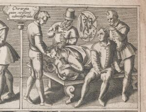 view Trepanning being performed