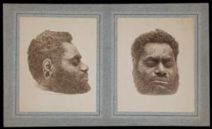 view The decapitated head of a man: two views. Photographs, 18--.