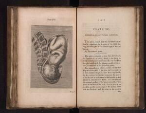 view A collection of engravings...midwifery