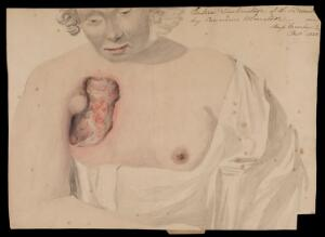 view Miss Mosley, afflicted with breast cancer. Watercolour, 1828.