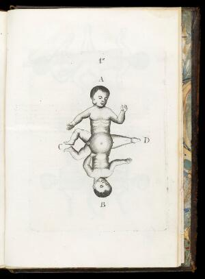 view Plate showing two conjoined infants