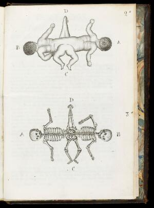 view Plates showing two sets of conjoined infants. Plate 3a shows how their skeletons are joined