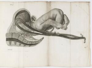 view Plate showing the birth of a baby, using forceps (3 of 4)