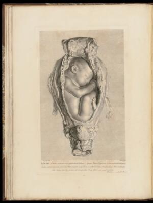 view The anatomy of the human gravid uterus exhibited in figures, - Plate XIII