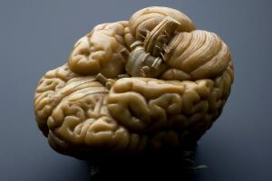 view Model of a human brain, Europe, 1801-1850