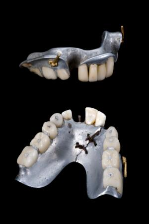 view Partial upper and lower dentures, Europe, 1858-1880