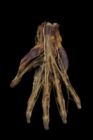 view Preserved human left hand, mid 19th century HUMAN REMAINS. Black background.