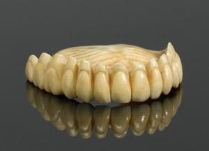 view Upper denture, England, 1780-1870