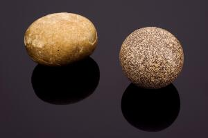 view Spherical bezoar stone from unknown animal, 1551-1750