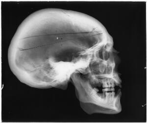 view X-ray of a human skull, England, 1901-1930