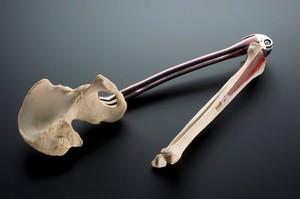 view Titanium femur replacement, England, 1981