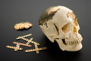 view Reconstructed skull, repaired by titanium cranioplasty, Engl