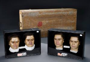 view Four wax heads showing the effects of syphilis and their tre
