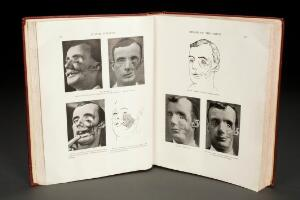 view 'Plastic Surgery of the Face' by Harold Gillies, London, Eng