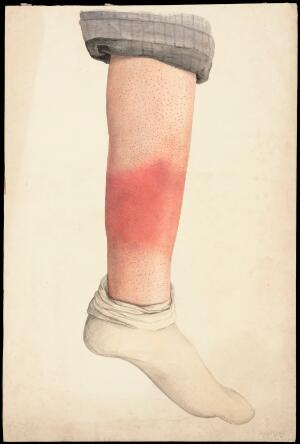 view The shin of a boy with a rash; rolled trouser-leg and sock in place. Watercolour by Mabel Green, 1896.