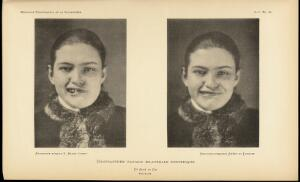view Two photographs showing different facial expressions.