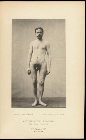 view Male figure with ataxic arthropathy of the hips