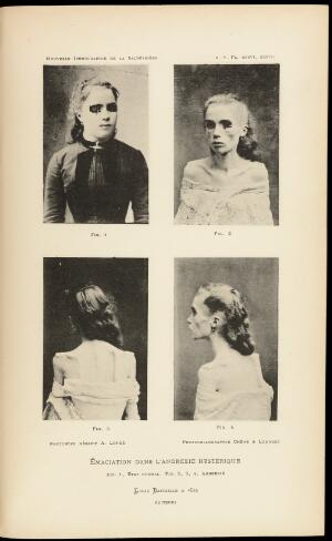 view Four photographs: Female figure with signs of anorexia
