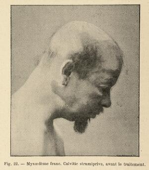 view Male figure with myxedema, after treatment. Caption: 'Myxoedeme franc. Calvitie strumiprive, avant le traitement'