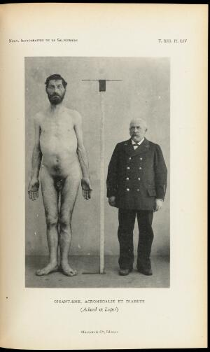 view Figure with gigantism acromegaly and diabetes