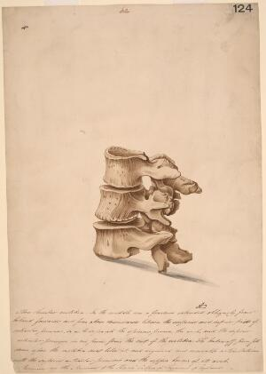view Three lumbar vertebrae, one of which is fractured