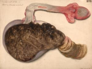view Tongue, oesophagus and stomach from a case of oxalic acid poisoning