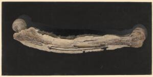 view Necrosis of the femur with sequestrum