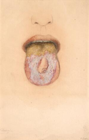 view Chronic superficial glossitis with leucoma and epithelioma of the tongue