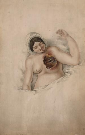 view Woman suffering from untreated cancer of the left breast