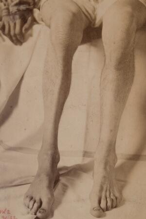 view Disuse atrophy of the leg