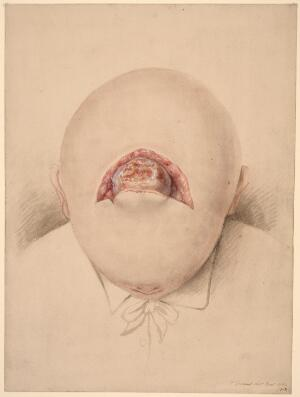 view Child's head with depressed fracture of the parietal bone and subsequently a hernia cerebri