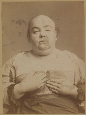 view Woman with myxoedema