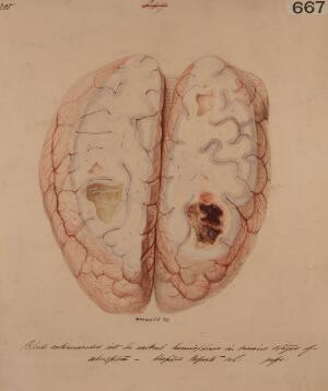 view Brain with blood extravasated into the cerebral hemispheres
