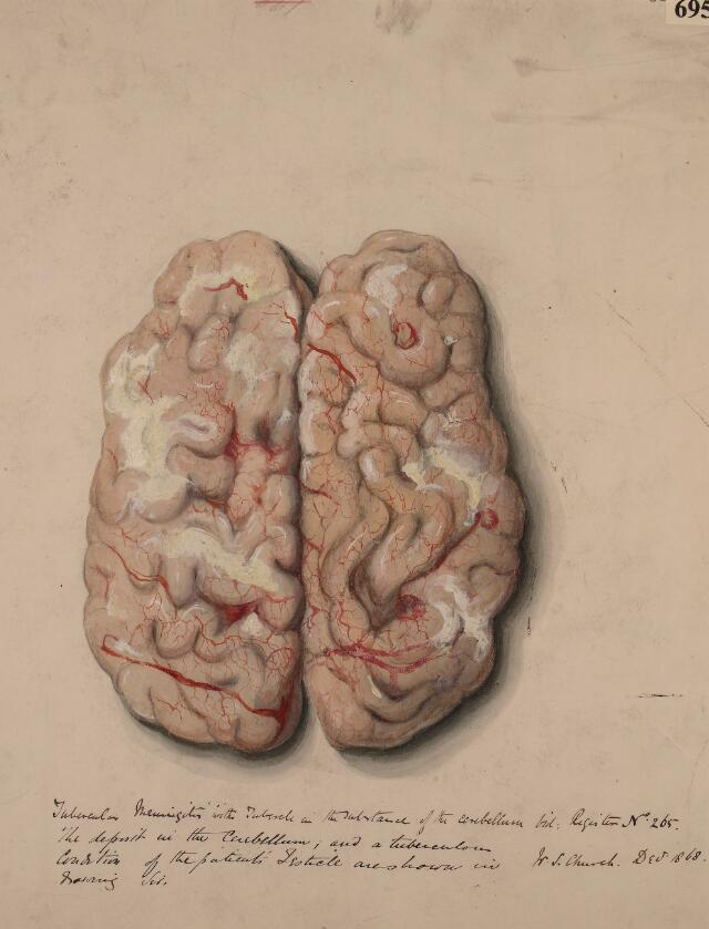 Cerebral Hemispheres Catalogue Search Wellcome Collection