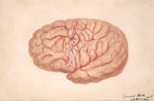 view Left cerebral hemisphere of a child who died from tubercular meningitis