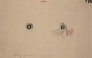 view Pupil of an eye occluded by lymph