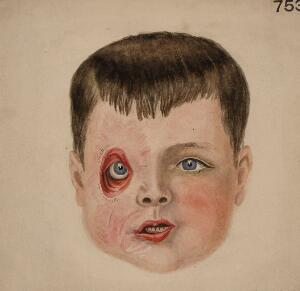 view Face of a boy who had ectropion of the right eyelids
