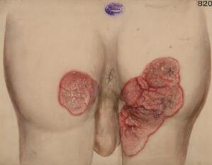 view Warty or papillary condition of the skin of the buttocks