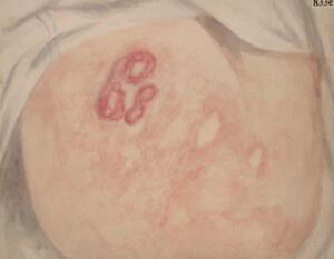 view Buttocks of a woman suffering from mycosis fungoides of the skin