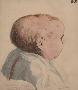 view Head of a child who had molluscum contagiosum