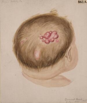 view Confluent molluscum contagiosum on the head of an infant