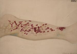 view Leg of a patient with scorbutus (scurvy), 1887